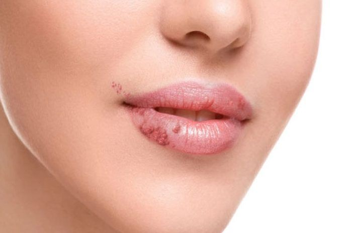 14 Ways To Get Rid Of Fordyce Spots On Lips