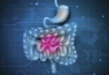 9 Ways To Heal Leaky Gut Fix Part Of Your Digestive System