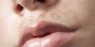 How To Lighten Dark Upper Lip 10 Home Remedies For Better Results