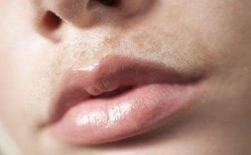 How To Lighten Dark Upper Lip 10 Home Remedies For Better Results