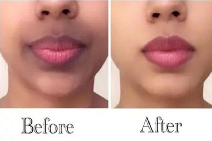 What Causes Dark Upper Lip