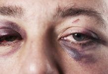 12 Home Remedies For Black Eye That Help Soothe The Pain