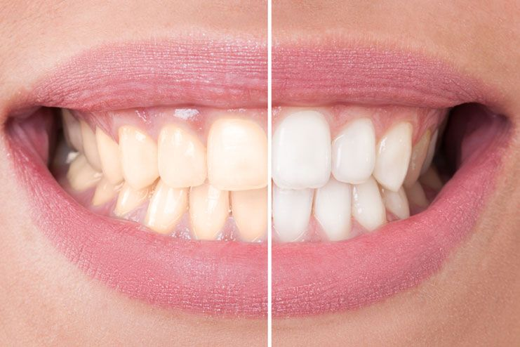 Excessive bleaching of teeth