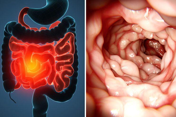 What is Crohns Disease