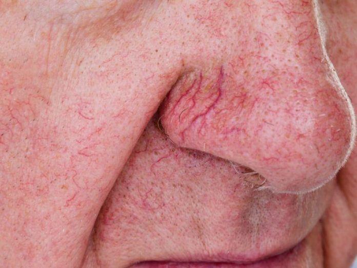 Remedies for spider veins | Healthspectra