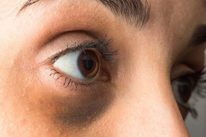 Everything You Should Know About Black Eye