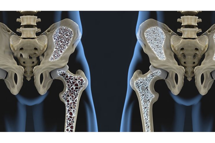 Signs-and-symptoms-of-Osteoporosis